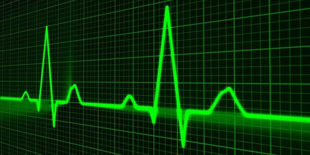 Gráfica mostrando un ritmo cardíaco